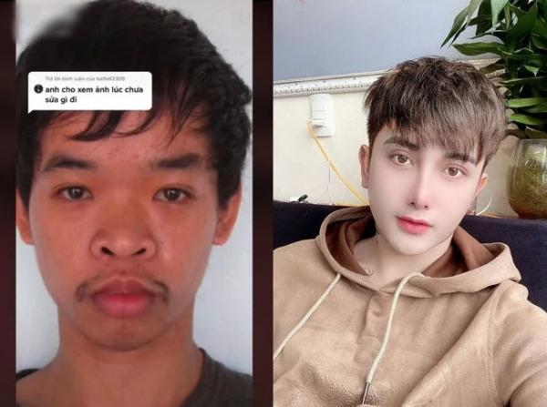 این پسر ویتنامی بعد از اینکه به خاطر قیافه اش در مصاحبه کاری رد شد، 17 هزار دلار هزینه کرد تا با جراحی های پلاستیک، چهره اش را به کلی عوض کند!